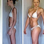 STOP ALL'ANORESSIA